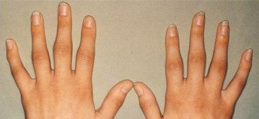 Artritis Reumatoide de     corta evolución