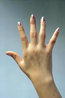Artritis en su inicio